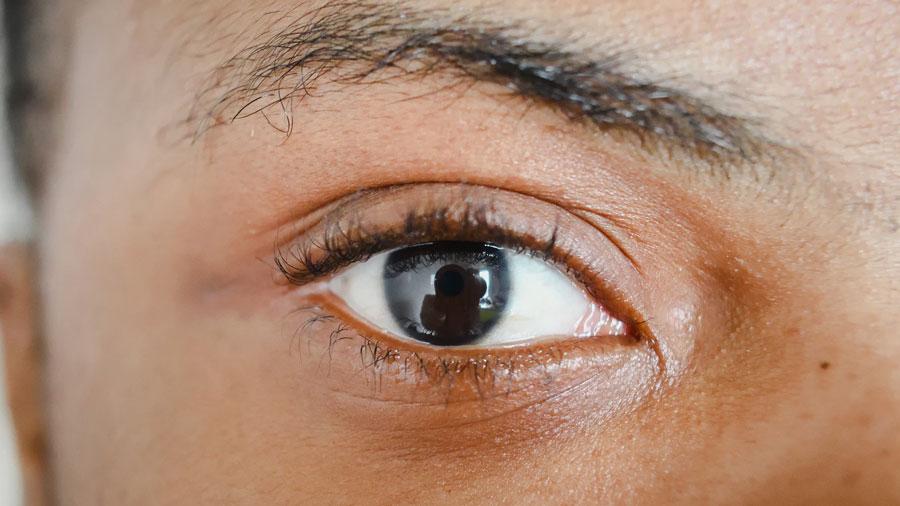 속 눈썹이 눈을 콕콕, 안검내반증 | 김연진 종합안과 부에나팍, 엘에이한인타운
